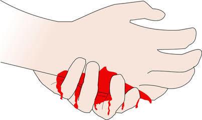 പമ്പ് ഹൗസ് നിര്മാണ പ്രവൃത്തിക്കിടെ മണ്ണിടിഞ്ഞ് തൊഴിലാളിക്ക് പരിക്ക്: മൂന്ന് പേര് അല്ഭുതകരമായി രക്ഷപ്പെട്ടു